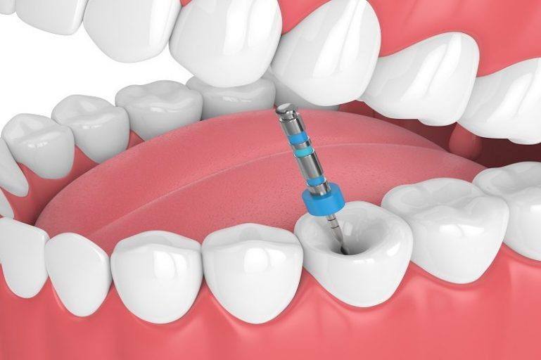 What is root canal